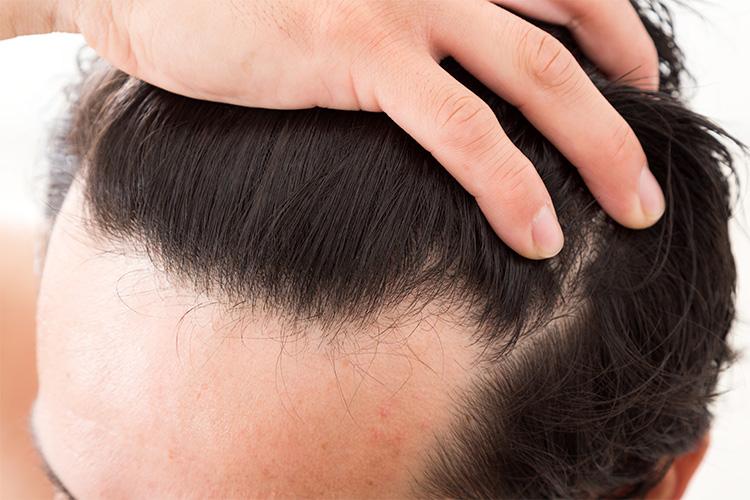 前髪 生え際 はげ 「生え際の後退」が目立ってきたときのチェック方法と対策について|...