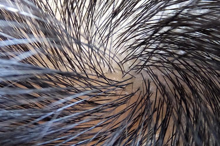 頭皮 の 乾燥